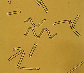 Spirulina Algen unter dem Mikroskop - Teil 2