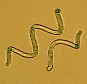 Spirulina Algen unter dem Mikroskop betrachtet